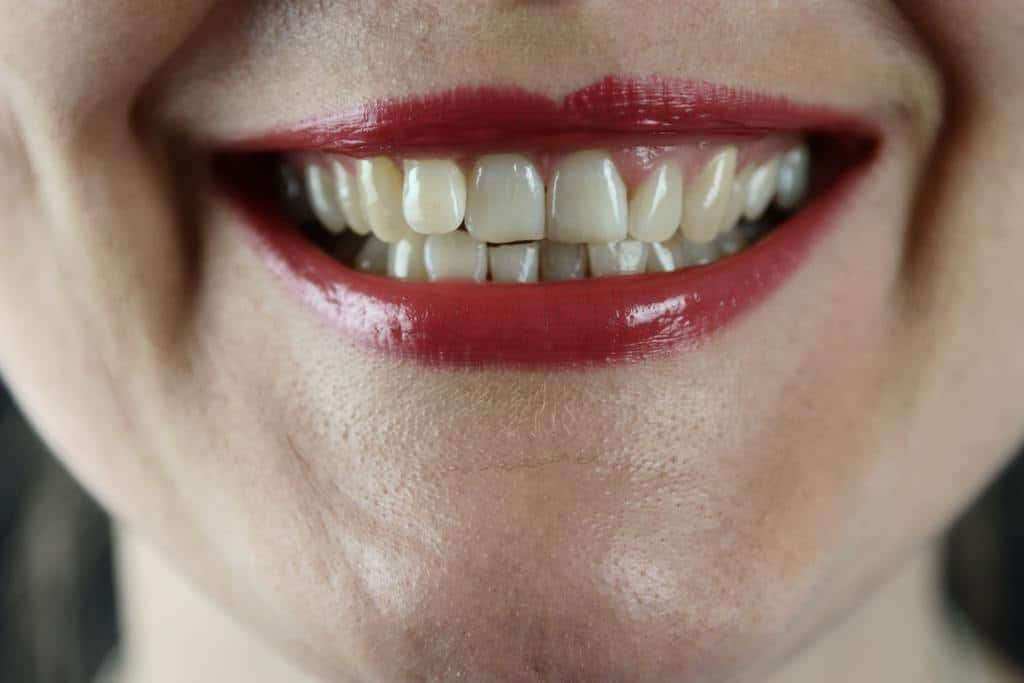 Poor Teeth Brushing Technique – Health Implications